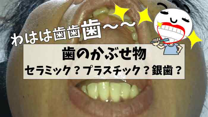 歯のクラウン(かぶせ物)治療と審美的観点|セラミック?プラスチックレジン?銀歯?違いを比較