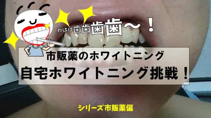 市販薬で歯の自宅ホワイトニングに挑戦|愛煙家とコーヒー中毒者注目!ピカピカの白い歯に★